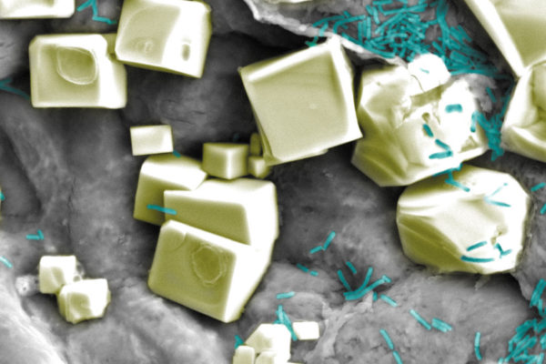 Colourised scanning electron microscope picture of E.Coli bacteria